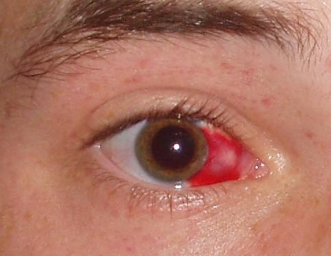Foto de Hipoasfagma (derrame ocular)